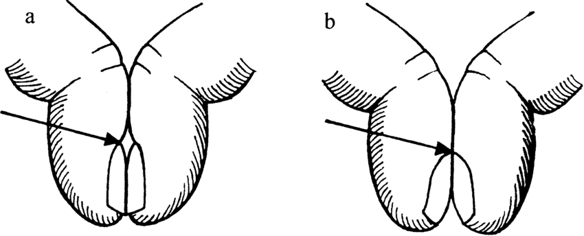 Schamroth test: (a) normal finger, and (b) space between
