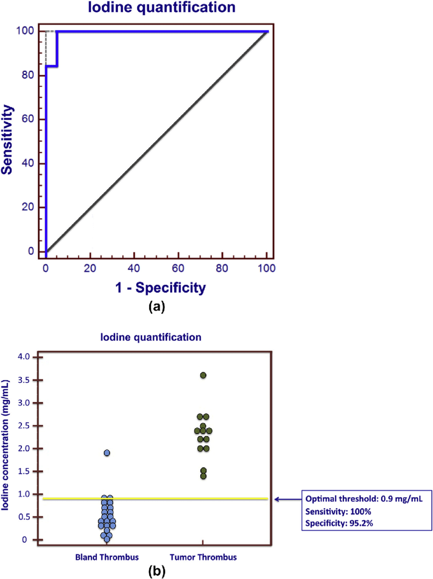 hight resolution of  a roc curve representing the diagnostic performance of iodine quantification in discriminating between bland