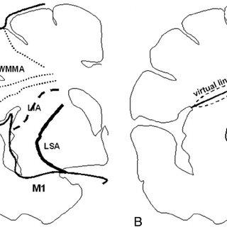 (PDF) Long Insular Artery Infarction: Characteristics of a
