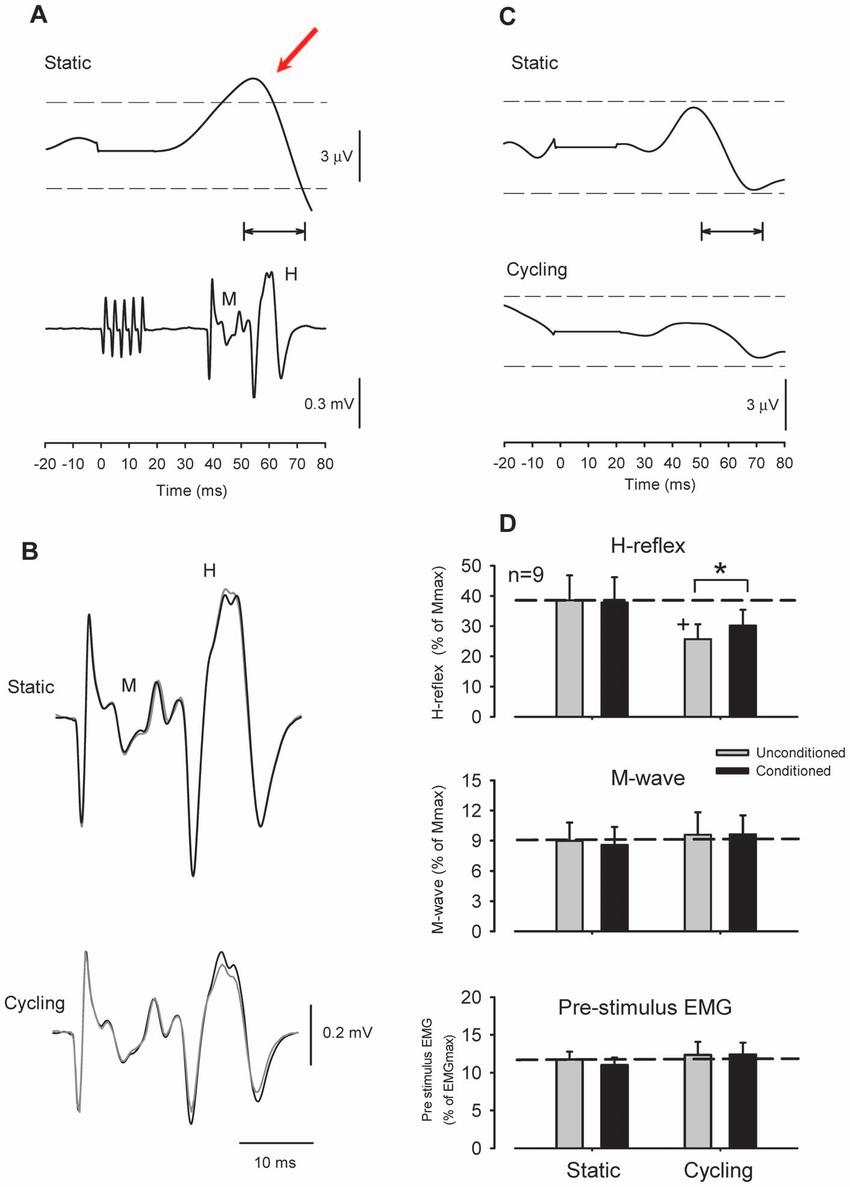 radial nerve diagram 12 volt tractor alternator wiring effect of superficial conditioning on flexor carpi download scientific