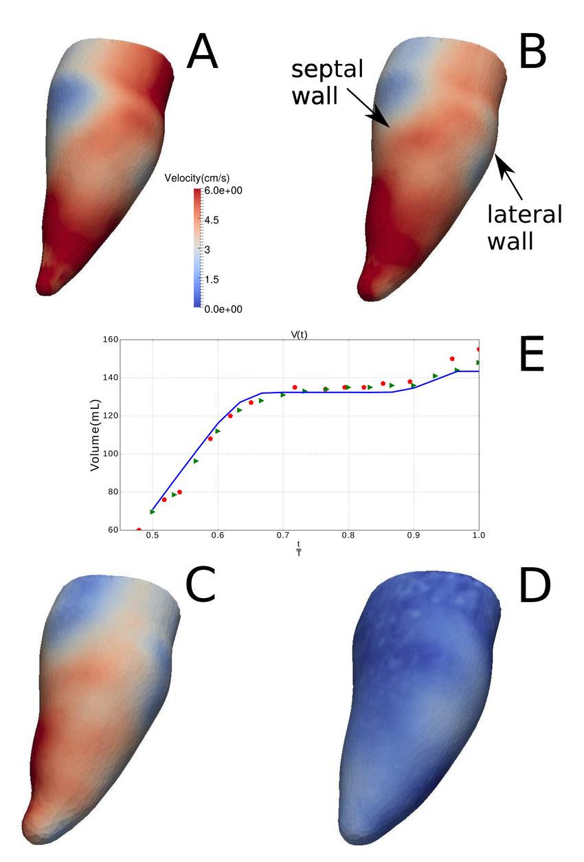 medium resolution of velocity magnitude distribution on the endocardium during diastole at download scientific diagram