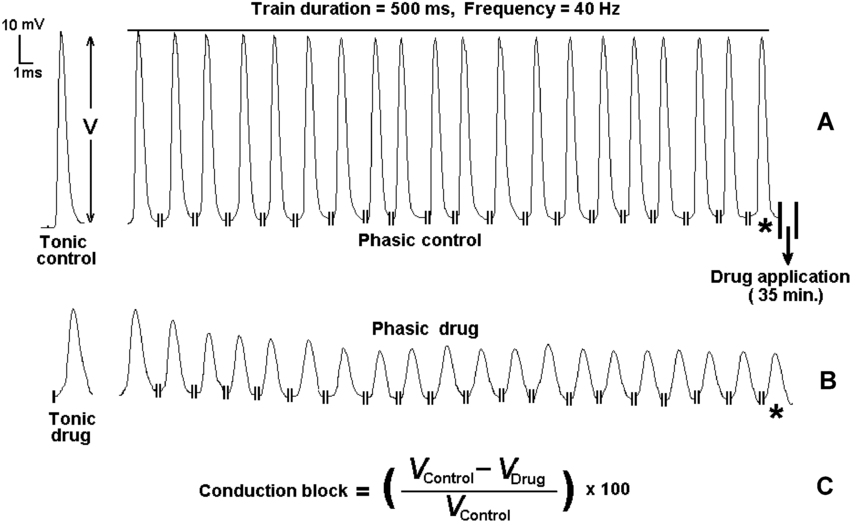 A typical record used to calculate tonic and phasic