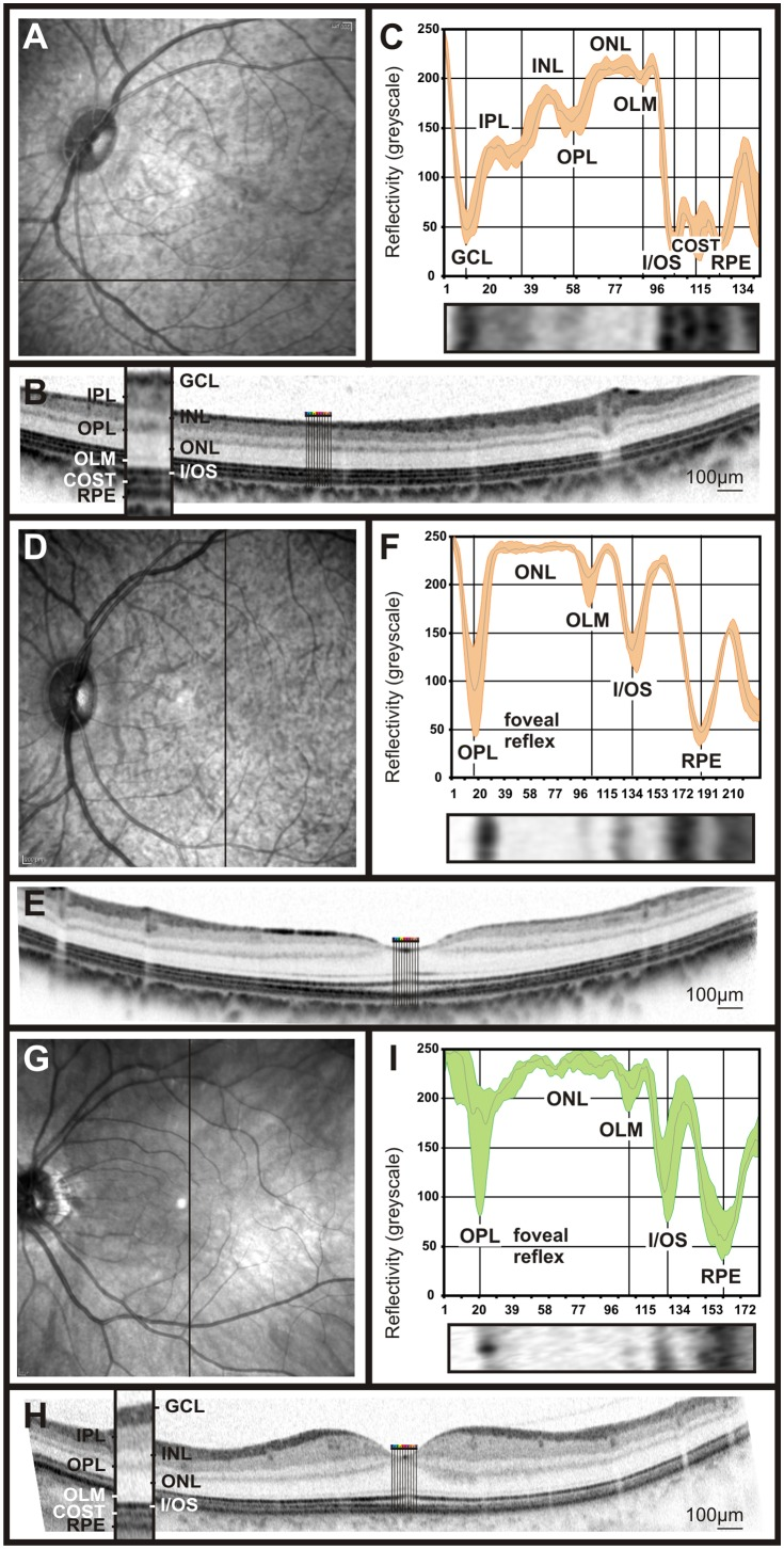hight resolution of slo native fundus imaging in non human primates a d and one of the download scientific diagram