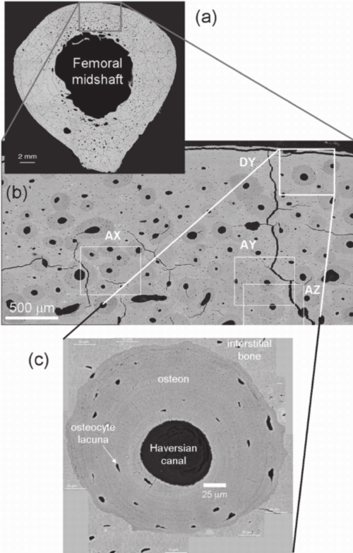 small resolution of  a overview image of the femoral midshaft bone section in the backscattered electron microscope with the osteons selected for nanoindentation from the