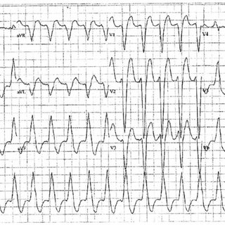 (PDF) Broad Complex Tachycardia in a Patient with a Dual