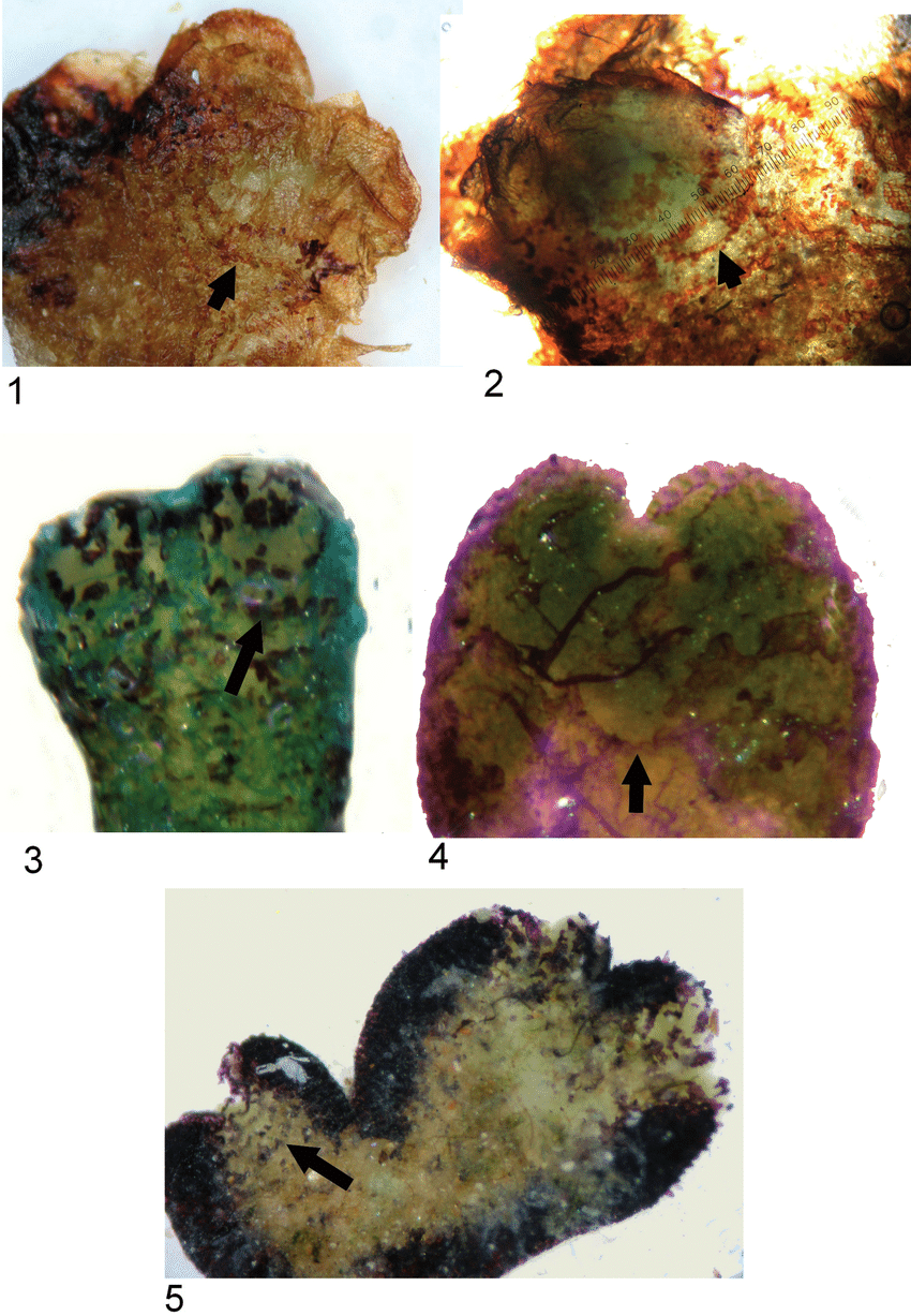 hight resolution of ve ntral surface of riccia sommieri levier showing ventral strips connected to