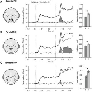 Neural correlates of spatial attention following target