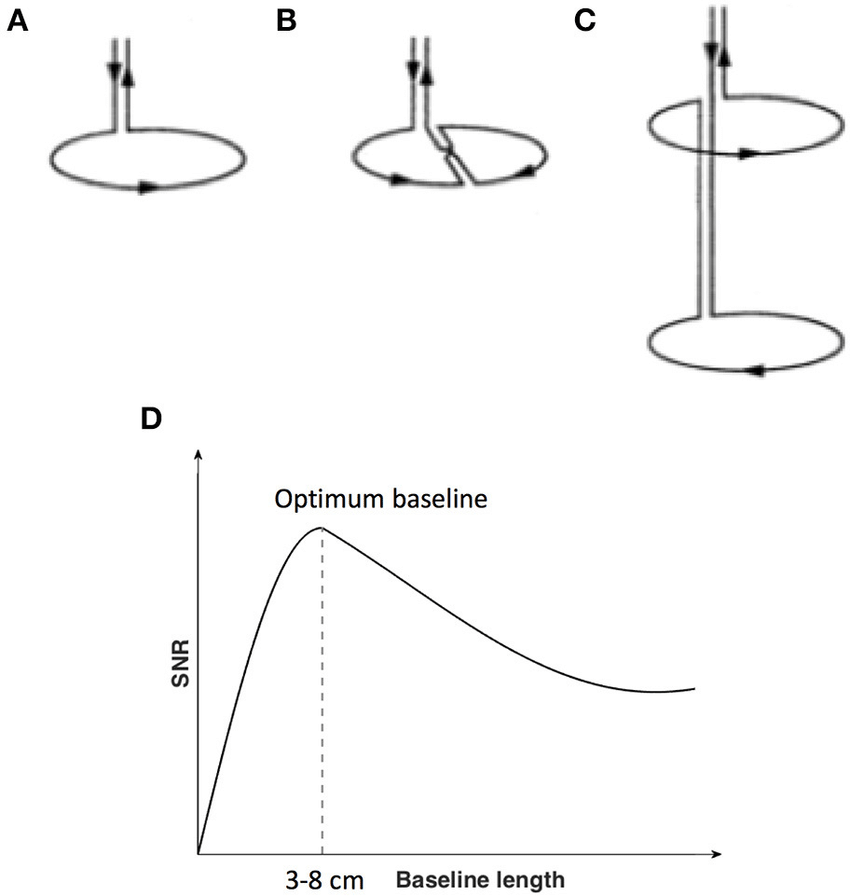Flux transformer (pick up coils). (A) Magnetometer; (B