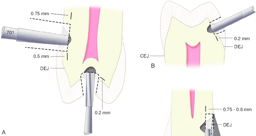 ergonomic workstation diagram 4 man zip wire wales 6 initial tooth preparation stage for conventional preparations. a, b,...   download scientific ...