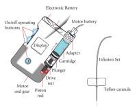 Main parts of an insulin pump. | Download Scientific Diagram