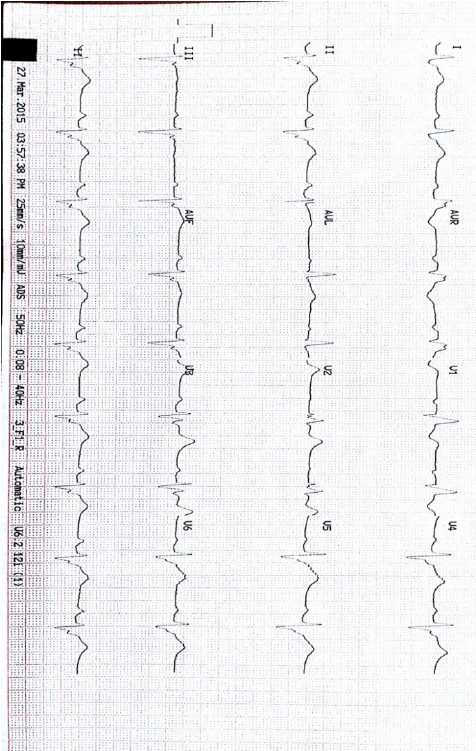 ECG three days later showing sinus rhythm with first