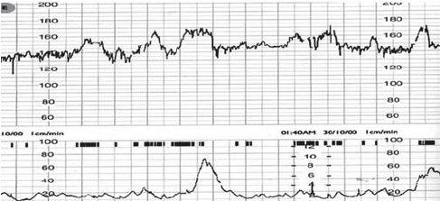 Reactive CTG with normal baseline heart rate (110-160 bpm ...