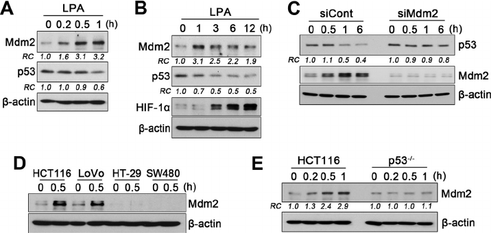 The change in p53 is Mdm2-dependent. A , Mdm2 and p53