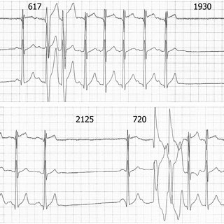 (PDF) Nonsustained atrial tachycardia with right or left