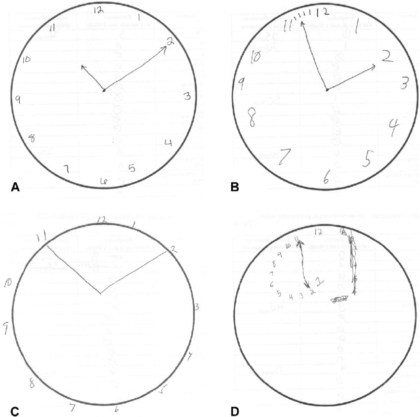 Sample Clock Draw Tests of patients with the following