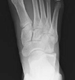 an 18 year old female with lisfranc fracture dislocation of right foot  [ 850 x 1919 Pixel ]