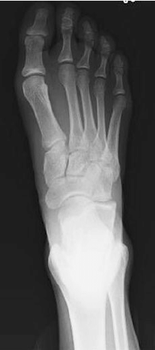 small resolution of an 18 year old female with lisfranc fracture dislocation of right foot