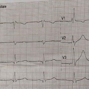 This ECG reveal sinoatrial nodal exit block with