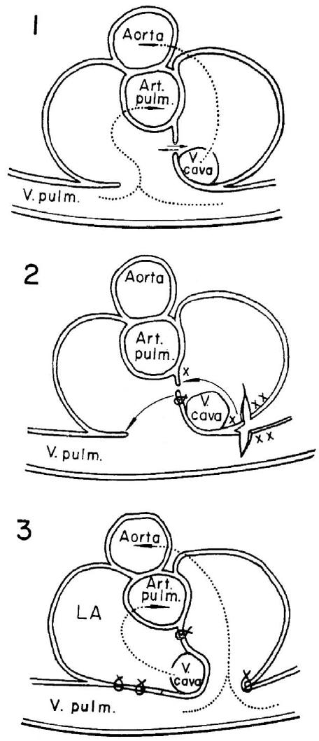 Senning operation. Diagrams of preoperative anatomy (1