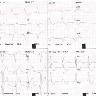 (PDF) TEMPORARY PACEMAKER LEAD PLACEMENT IN PATIENT WITH
