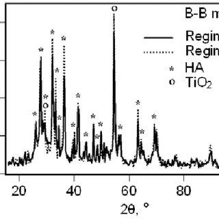 Schematics of X-ray diffraction pattern registration in