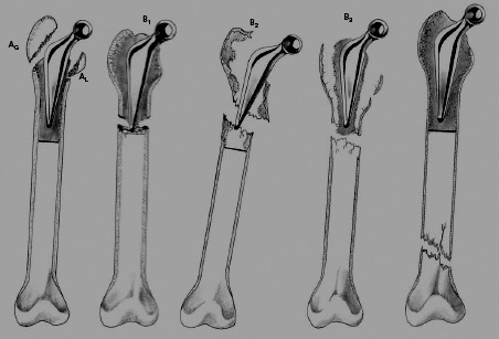 The Vancouver classification of periprosthetic femoral fractures. Type... | Download Scientific Diagram