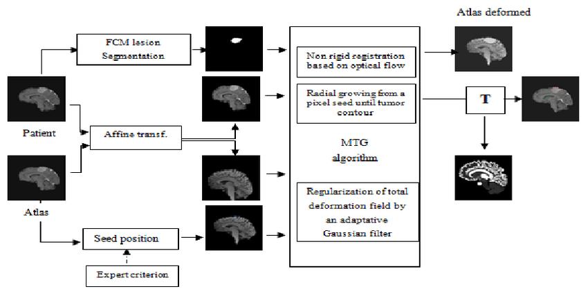 Block diagram of the atlas-based segmentation method using