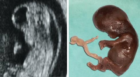 lip anatomy diagram motor start riecht nach gummi bilateral cleft and palate in a 13-week fetus. note premaxillary... | download scientific ...