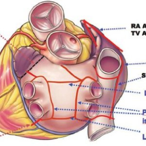 Complete set of atrial lesions as done in the Coxmaze IV procedure   Download Scientific Diagram
