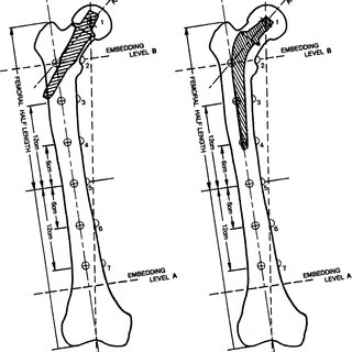 (PDF) A proximal femoral implant preserves physiological