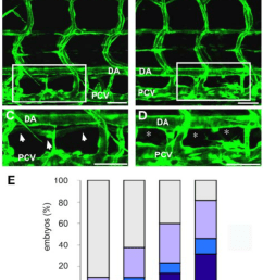 knockdown of synectin disrupts thoracic duct formation in zebrafish in download scientific diagram [ 850 x 1193 Pixel ]