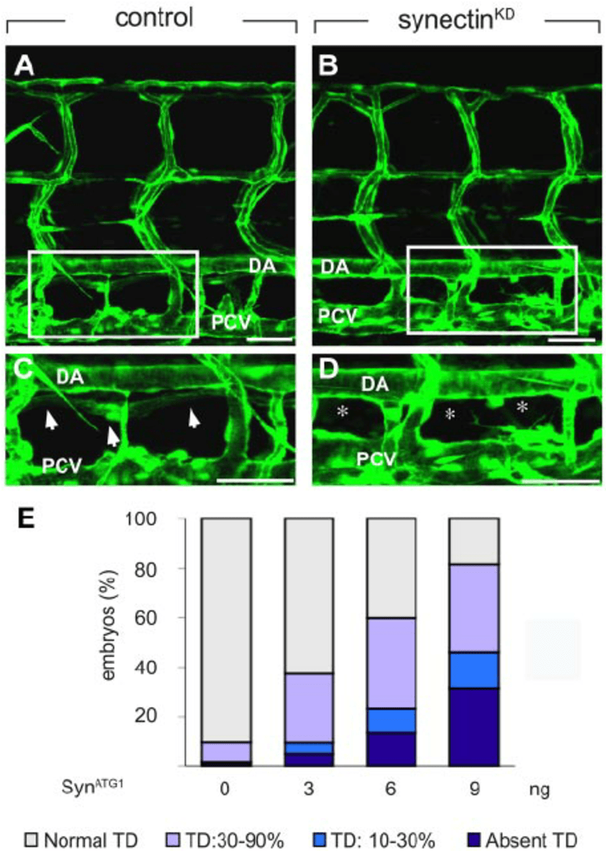 hight resolution of knockdown of synectin disrupts thoracic duct formation in zebrafish in download scientific diagram