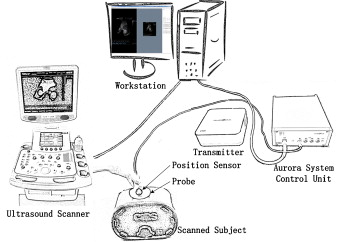 The schematic diagram of the freehand 3D ultrasound