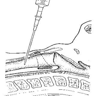 (PDF) Percutaneous tracheostomy