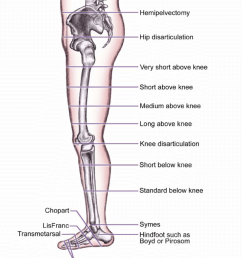 levels of amputation of the lower extremity  [ 850 x 991 Pixel ]