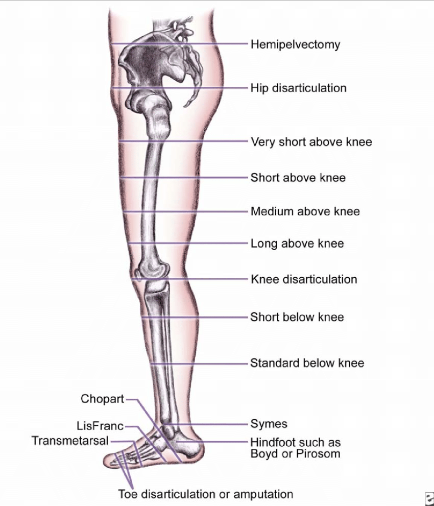 medium resolution of levels of amputation of the lower extremity