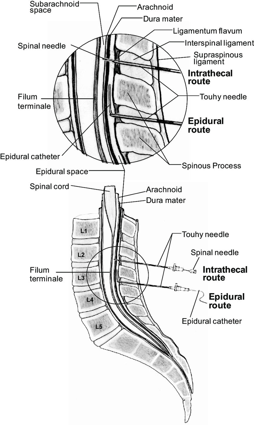 Gross anatomy of the spinal cord. Cox F (2009