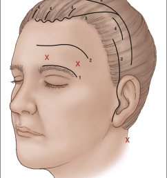 brow lifting incisions 1 direct 2 midforehead 3 temporal [ 850 x 1123 Pixel ]