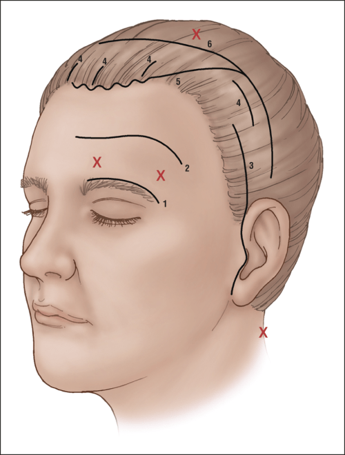 small resolution of brow lifting incisions 1 direct 2 midforehead 3 temporal