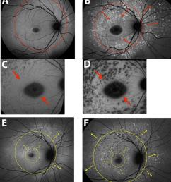 spatial progression of fundus flecks short wavelength autofluorescence download scientific diagram [ 850 x 954 Pixel ]