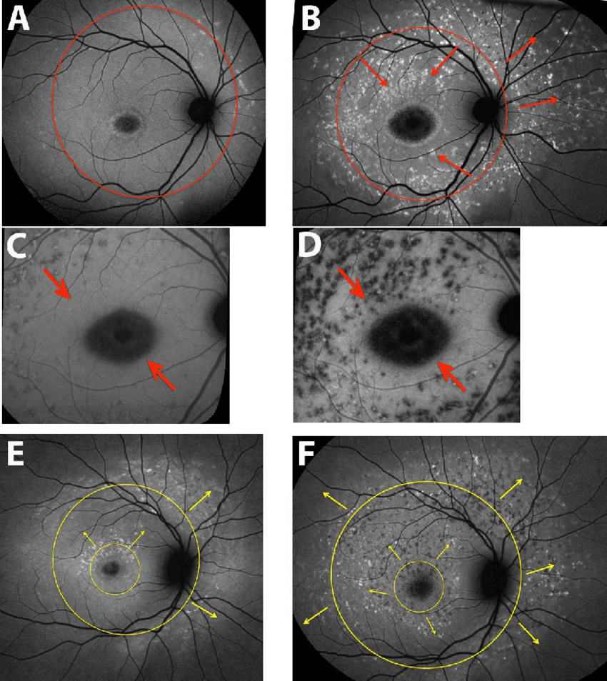 hight resolution of spatial progression of fundus flecks short wavelength autofluorescence download scientific diagram