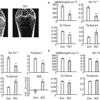 SCI results in a trend of trabecular bone loss and