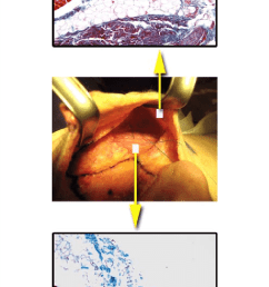 intraoperative dissection of the premasseter space right side of face the upper border [ 714 x 1696 Pixel ]