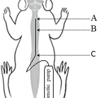 The schematic presentation of intrathecal catheter