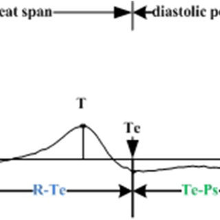 The block diagram for characteristic wave detection of ECG