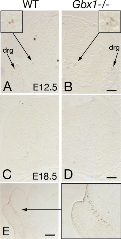 small resolution of examples of tunel labeling of lumbar spinal cord sections of wild type a