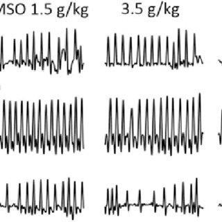 (PDF) Respiratory Toxicity of Dimethyl Sulfoxide