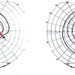 Goldmann visual field test shows inferior nasal