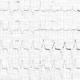 (PDF) Use of Ivabradine in a Patient Having Pacemaker and