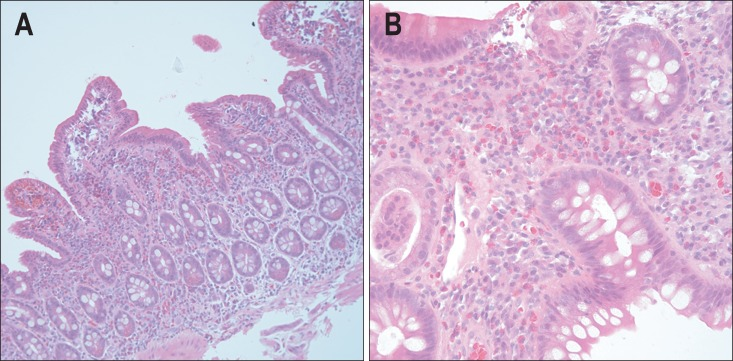 ... histology. (A) Eosinophilic infiltration with mixed... - Figure 3 of 3